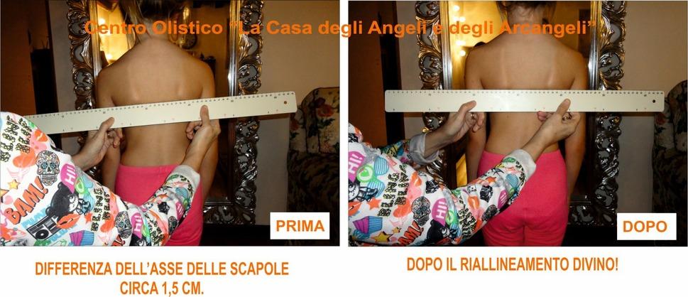 Mal di schiena e problemi posturali ALESSIA__FIGLIA_SONIA__FOTO__SCAPOLE_X_FB_74_1.jpg (Art. corrente, Pag. 1, Foto banner)