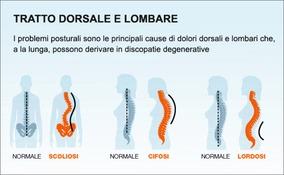 Ernia di trattamento di reparto cervicale di sintomi di spina dorsale e un trattamento