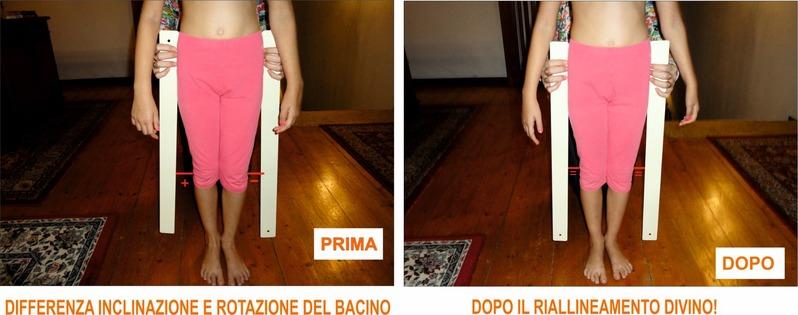 Perché è importante allineare la Colonna Vertebral ALESSIA__FIGLIA_SONIA__FOTO_BACI.jpg (Art. corrente, Pag. 1, Foto ingrandimento)