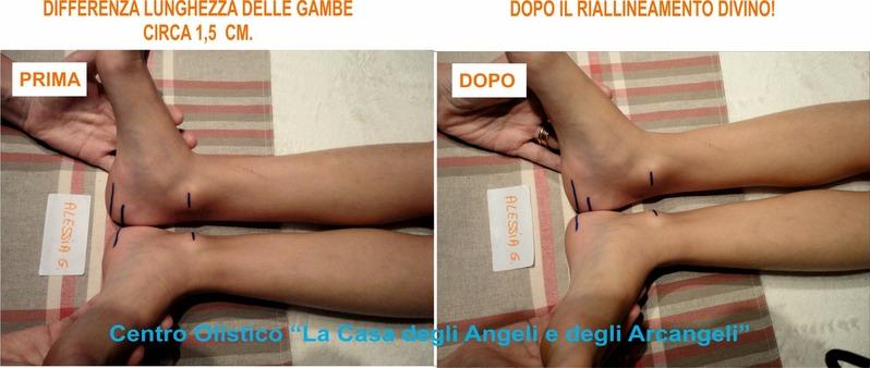 Perché è importante allineare la Colonna Vertebral ALESSIA__FIGLIA_SONIA__FOTO__PIE.jpg (Art. corrente, Pag. 1, Foto ingrandimento)