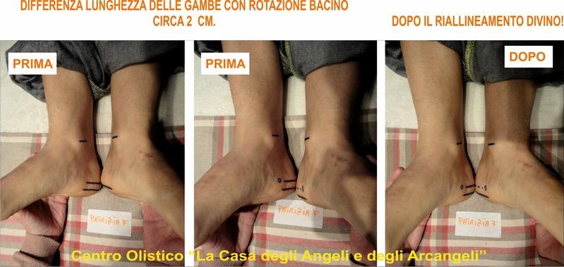 Riallineamento Divino della colonna vertebrale FOTO_PATRIZIA__PIEDI_X_FB_9_1.jpg (Art. corrente, Pag. 1, Foto ingrandimento)